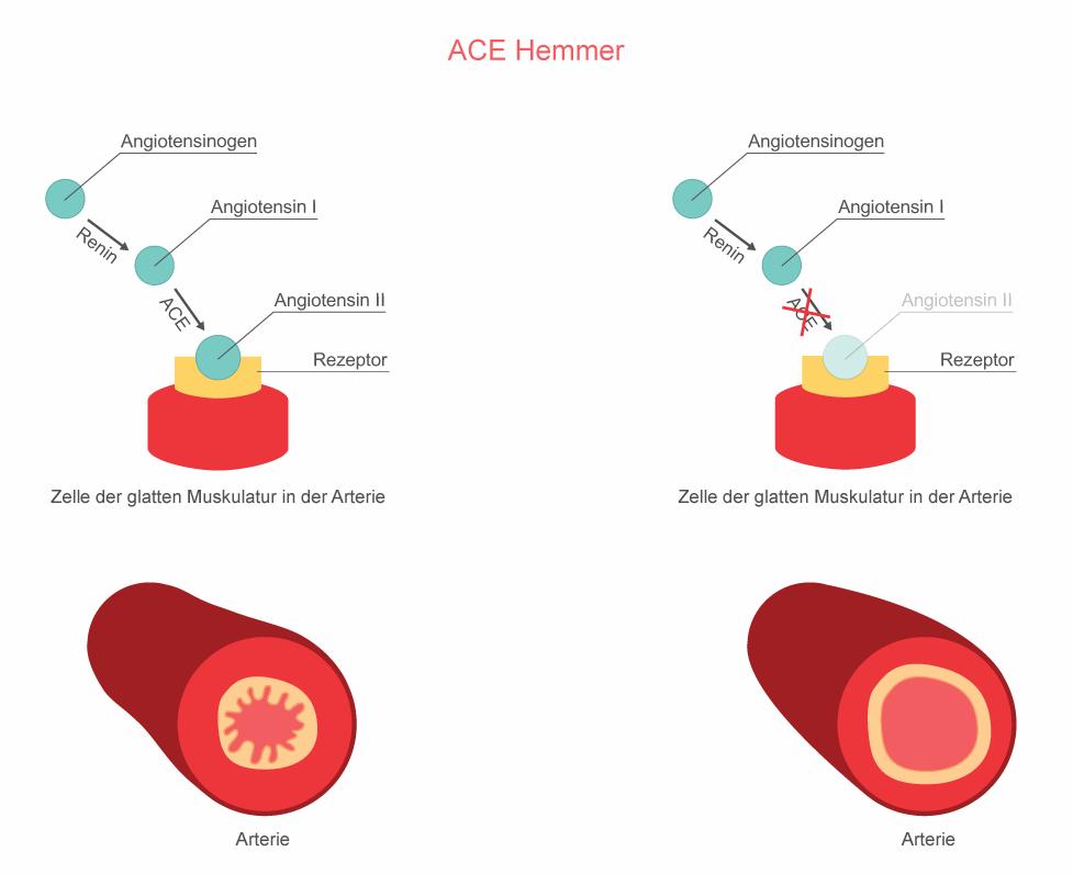 Wirkungsweise Bluthochdruck Medikament ACE-Hemmer