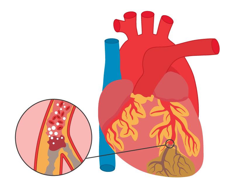 Инфаркт миокарда – лидер среди лидеров