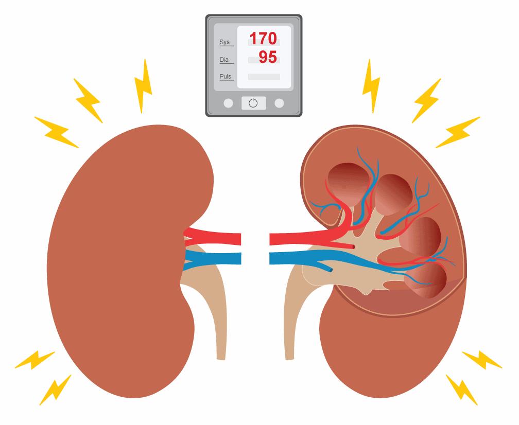 Bluthochdruck und Nieren | BlutdruckDaten-Lexikon