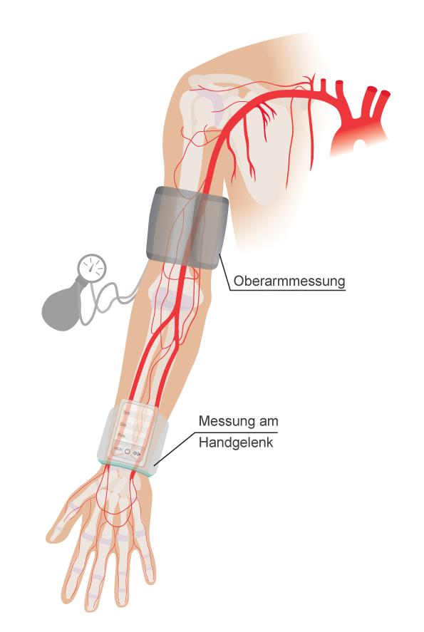 Arterie Arm